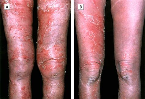 A Case of Generalized Pustular Psoriasis Treated With
