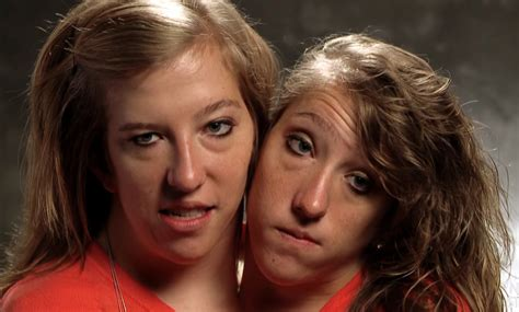 Remember Conjoined Twins Abby And Brittany? Here's What